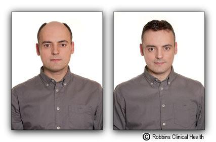 before-after-stuppid
